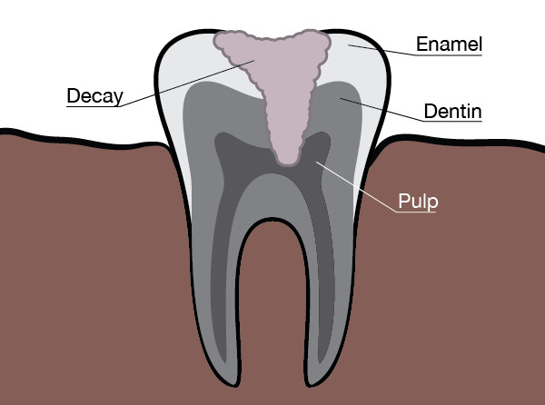 A chart from our Dentist in Redmond WA showing a cutaway of how tooth decay affects your teeth