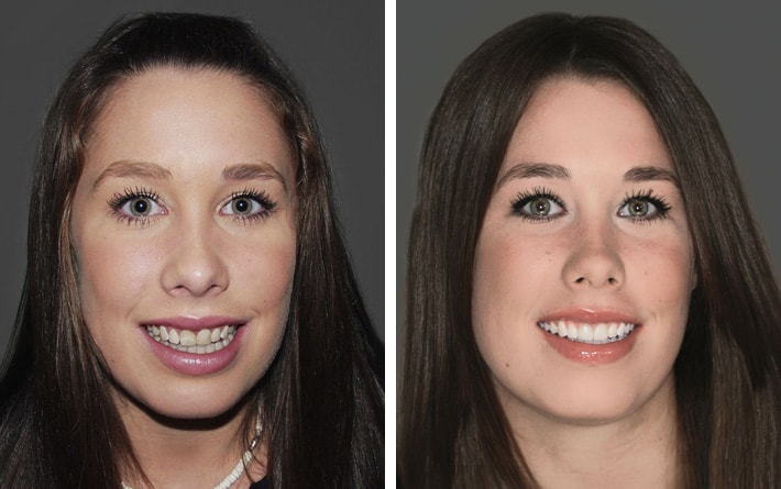 Cosmetic Dentist Redmond | Smile Artistry's Smile Makeovers