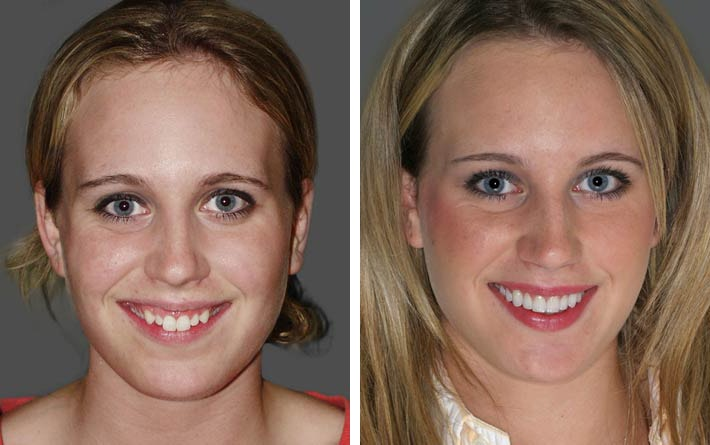 Cosmetic Dentist Redmond Smile Artistry S Smile Makeovers