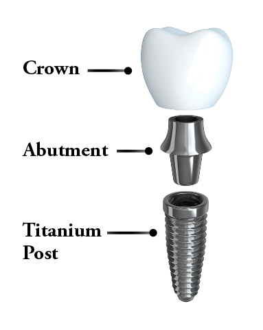 The breakdown of what a Redmond dental implant consists of: the titanium post, the abutment, and the crown.