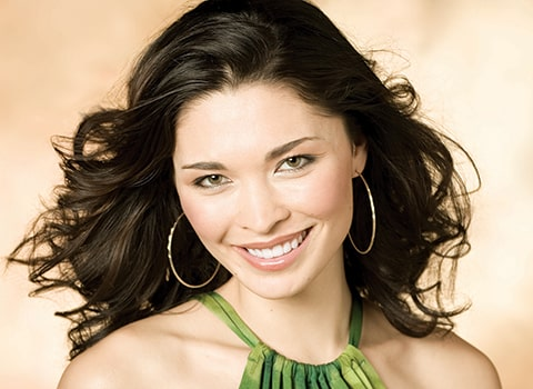 Actual cosmetic dentistry patient of Dr. Karen McNeill, a Redmond dentist