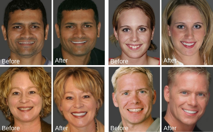 Smile makeover before and after photos of actual patients of this Redmond dentist.