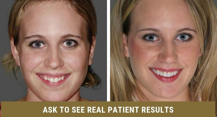 Ask to see real patient results.